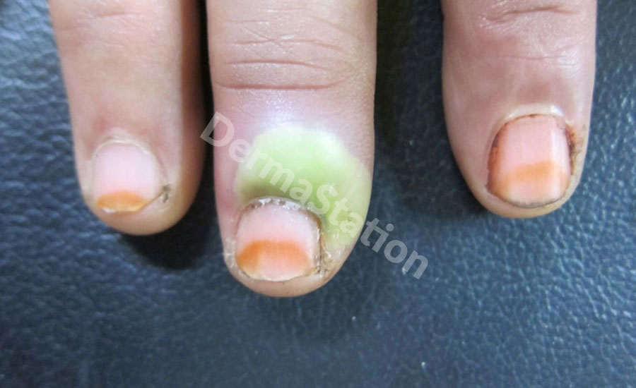 ACUTE PARONYCHIA (BACTERIAL INFECTION OF NAIL FOLD)