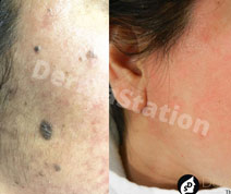 Before And After Treatments Images