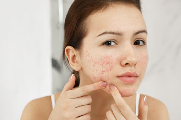 Acne Scar Treatment In Janakpuri, Dwarka, West Delhi