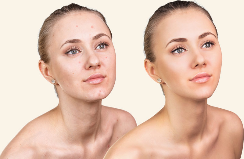 Acne scar removal in West Delhi, Dermatologist In Janakpuri