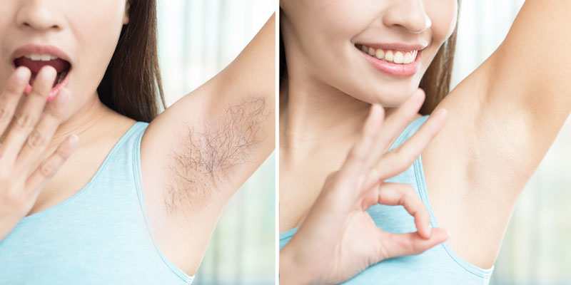 Laser hair removal in dwarka, Laser hair removal in Janakpuri