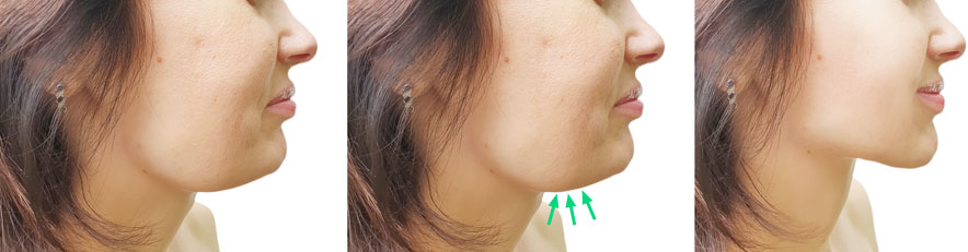 KYBELLA Treatment For Double Chin In West Delhi, dermatologist in Janakpuri, dermatologist in dwarka