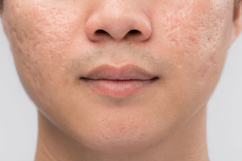 Microneedle Radiofrequency Treatments For acne scars