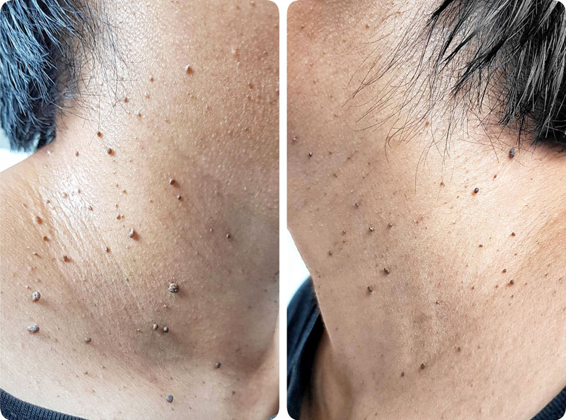 Skin Tags Removal In Janakpuri