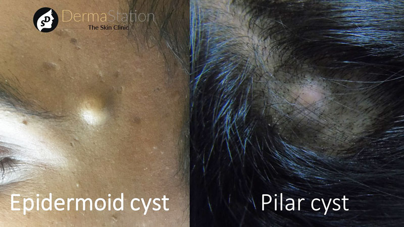 Epidermoid and Pilar Cysts